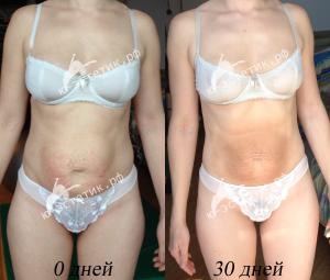 как легко похудеть после родов на гв