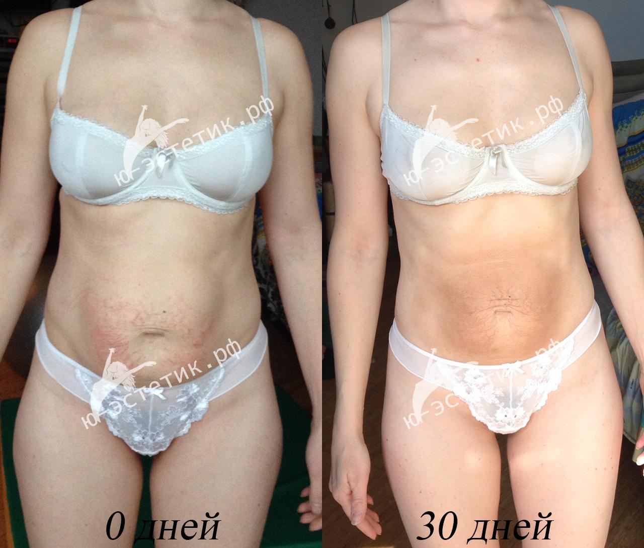 как похудеть за месяц в 12 лет